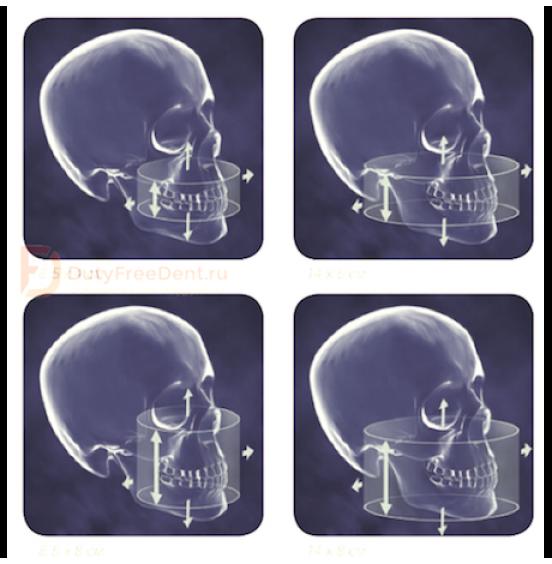 CB-500 - аппарат панорамный рентгеновский стоматологический с функцией томографии Gendex