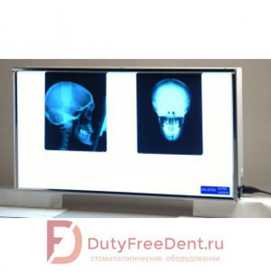 Velopex Super Viewer - универсальный негатоскоп для всех типов рентгенограмм